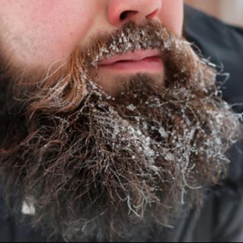 7 metoder til at undgå slidt skæg vinteren igennem
