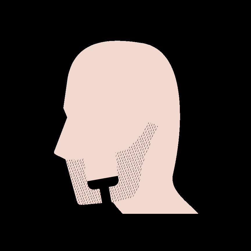Kan man have skægpest andre steder