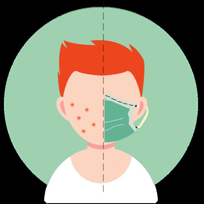 Påvirker mundbind skæg og hud?