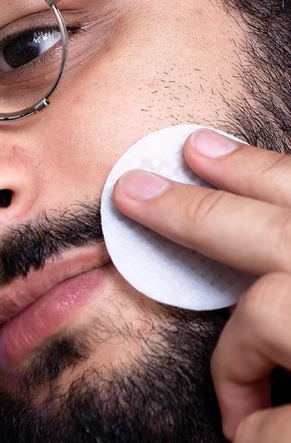 Em artigo sobre alergia e sensibilidade na pele, foto de homem com barba e óculos, pele clara, olhos castanhos, passando um algodão circular na região da bochecha.