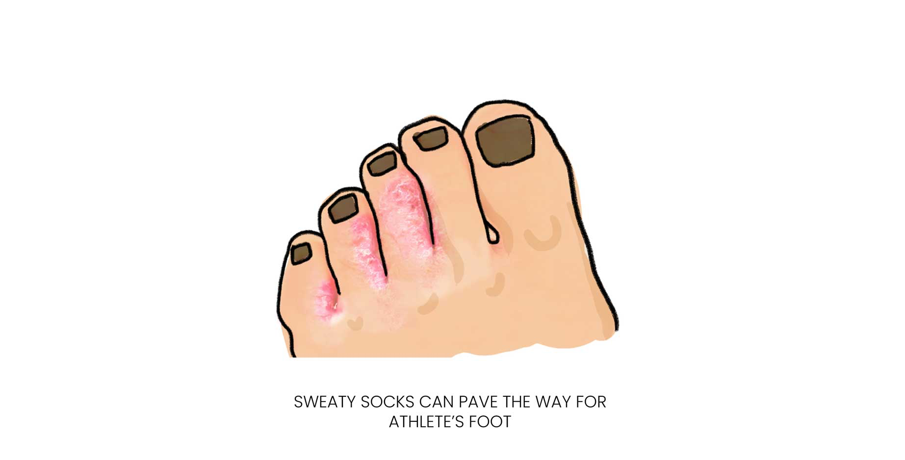Sweaty workout clothes and socks - athlete's foot