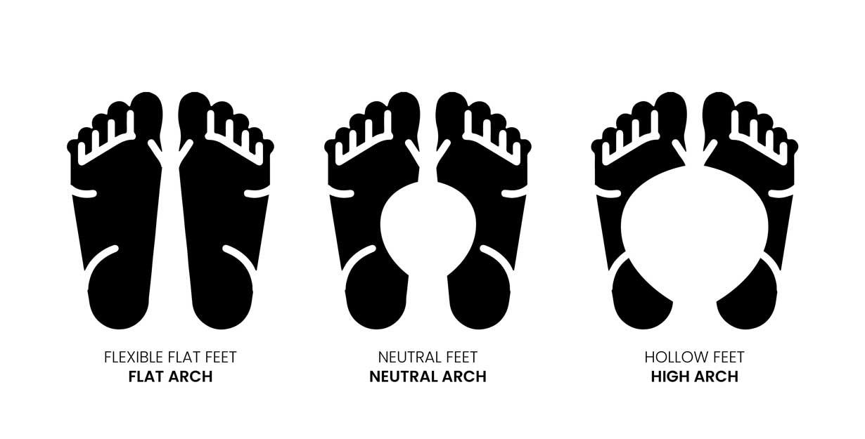 Three foot shapes: flexible flat, neutral, and flat feet
