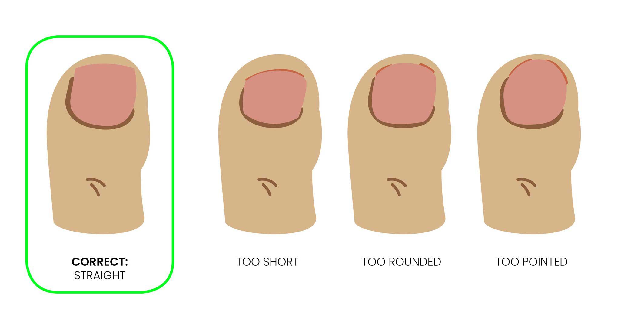 Trim toenails regularly - straight across