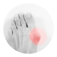 The Slabway shiatsu foot massager machine with heat can alleviate bunions and plantar fasciitis