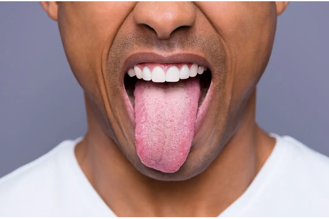 A Guide To Tongue Scraping
